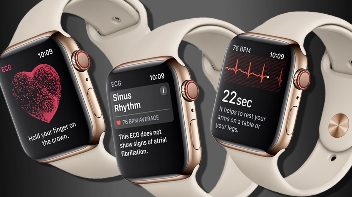 Recensione Apple Watch 4